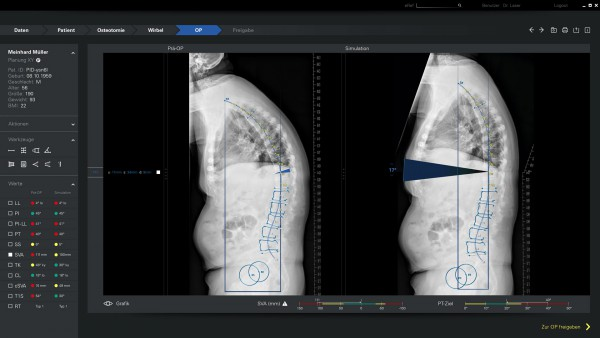 Spontech Vertaplan Osteotomie